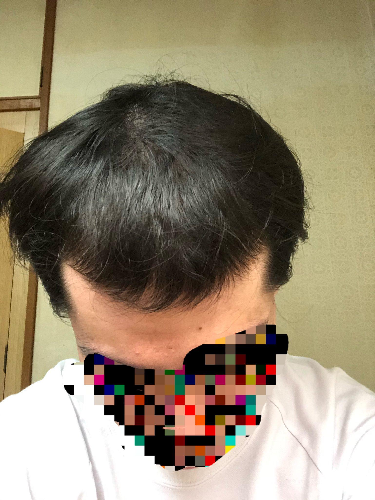 21歳男性の髪の毛