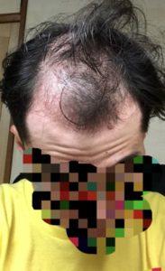 22歳若はげの頭皮