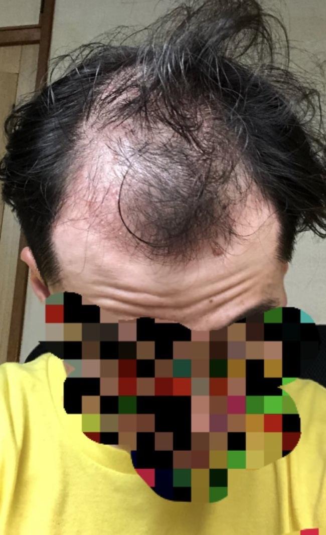 21歳 大学生男性の頭皮
