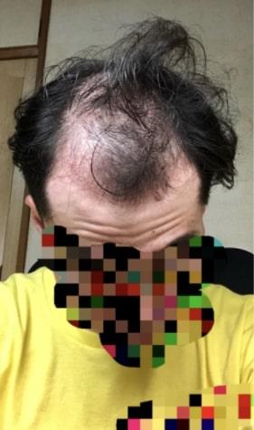 21歳 若はげ 髪の毛