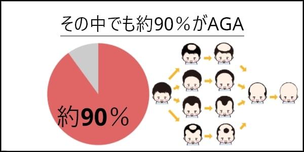 90%がAGA