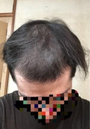AGA治療2か月目の頭皮写真