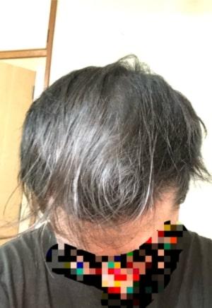 細く弱々しい髪の毛