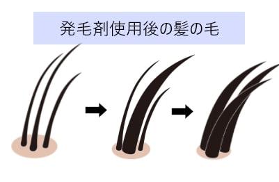 発毛剤使用後の髪の毛